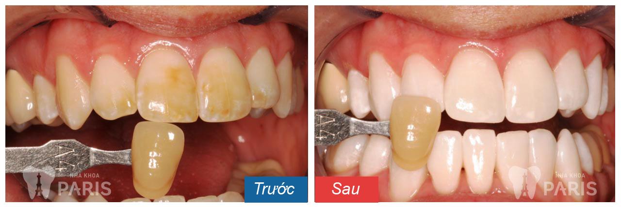 Có nên mua thuốc tự tẩy trắng răng tại nhà hay không?