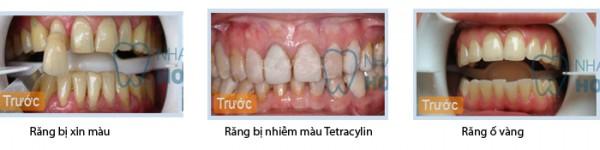 Tại sao răng lại vàng theo thời gian?
