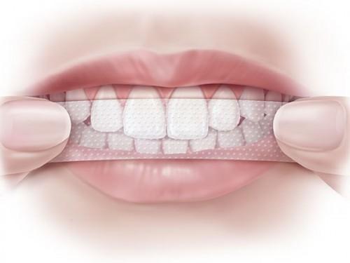 9 lưu ý khi dùng miếng dán trắng răng bạn không thể bỏ qua 2