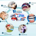 Có cao răng có nên tẩy trắng răng không?
