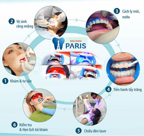 Tẩy răng đau không và có nguy hiểm không? 2