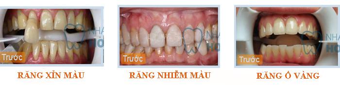 Cách trị bệnh răng vàng hiệu quả nhất 1