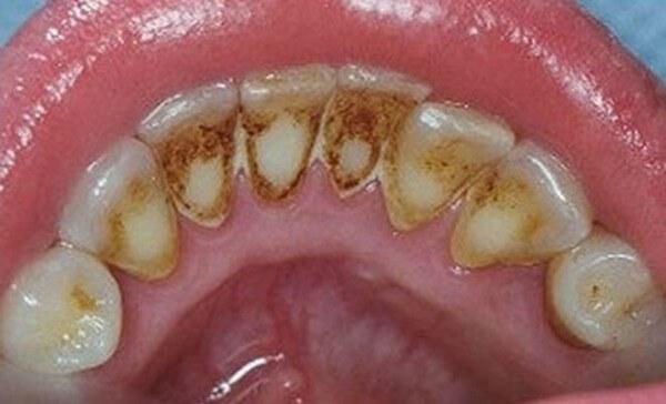 """Cách làm hết mảng bám đen trên răng Tại Nhà """"SIÊU TỐC"""""""