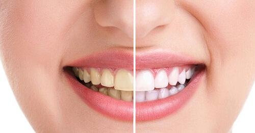 Tẩy trắng răng và tác hại không lường trước! 1