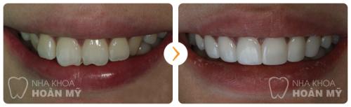 Có nên dùng bột trắng răng để tự tẩy tại nhà không? 5