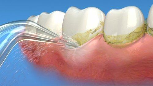 Cách làm sạch mảng bám và trắng răng hiệu quả