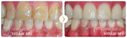 Có thể làm trắng chân răng giả được không?