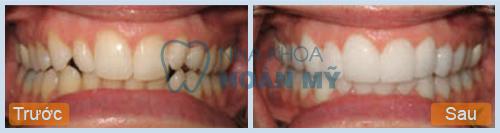 Làm trắng răng bằng laser có an toàn không?