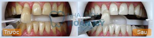 Thuốc tẩy làm trắng răng bị xỉn có hại gì không?