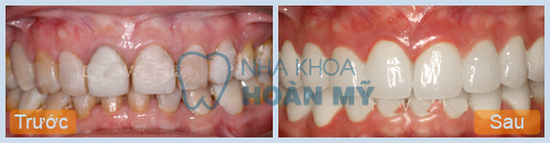 Ngậm máng tẩy trắng răng có đều màu không?
