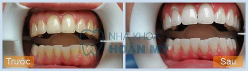 Ngậm ôxy già làm trắng răng có hại không?
