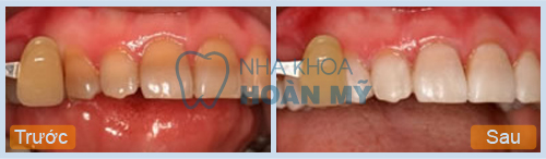 Tẩy trắng cho men răng xấu có giúp răng đẹp hơn không?