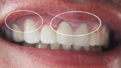 Có thể làm trắng chân răng giả được không? 1