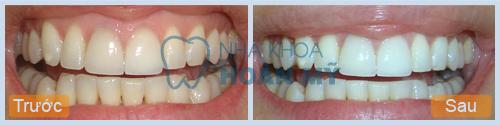 Làm trắng răng có hại không, cách khắc phục như thế nào?2