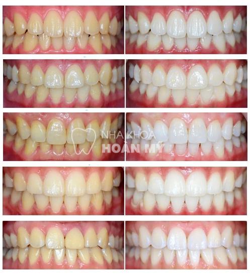 Thông tin hữu ích về miếng dán trắng răng Crest 6