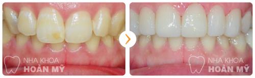 Áp dụng tẩy trắng răng khi nào
