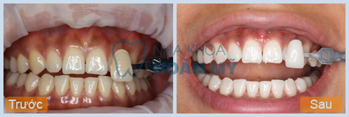 Tẩy trắng răng hết bao nhiêu tiền khi sử dụng công nghệ Hoa Kỳ?