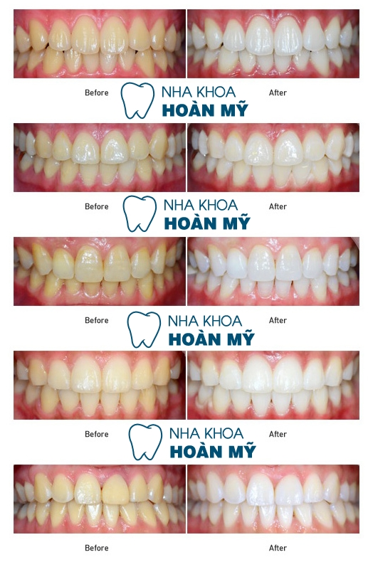 Cách tẩy trắng răng hiệu quả - an toàn chỉ 1 lần duy nhất 1