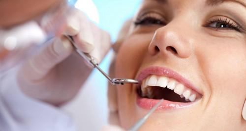 8 ghi nhớ để tự làm trắng răng an toàn và hiệu quả 51