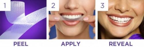 Miếng dán làm trắng răng – những điều quan trọng cần biết