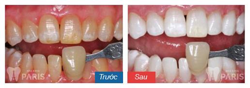 Răng trắng như sao Hàn bằng các biện pháp tại phòng nha
