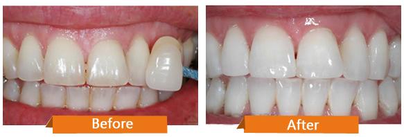 Giá 1 lần làm trắng răng là bao nhiêu để hiệu quả tốt nhất?