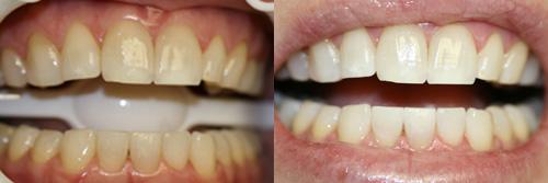 Làm sao để răng hết ố vàng và sáng đẹp nhanh nhất? 1