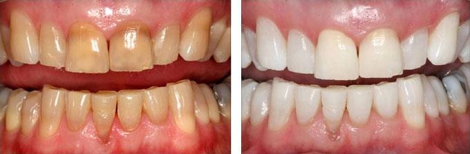 Giá tiền 1 liệu trình tẩy trắng răng tại nha khoa paris