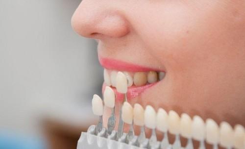 Có phải tẩy trắng răng thường xuyên không?