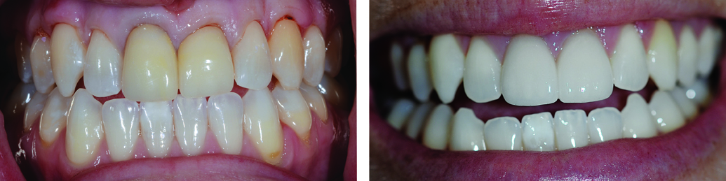 two-front-teeth-veneers-and-teeth-whitening-to-remove-yellow-staining