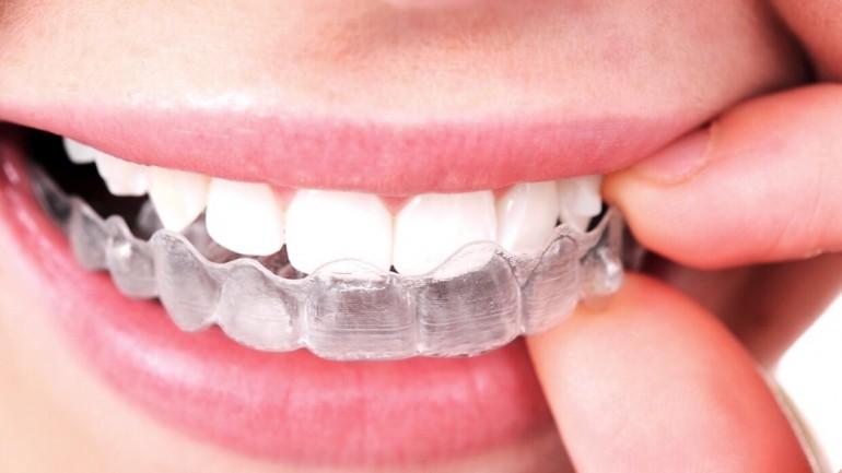 Góc giải đáp: Giá tẩy trắng răng bằng máng là bao nhiêu? 2