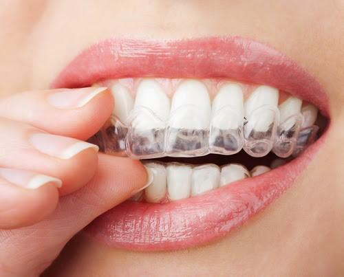 Góc giải đáp: Giá tẩy trắng răng bằng máng là bao nhiêu? 1