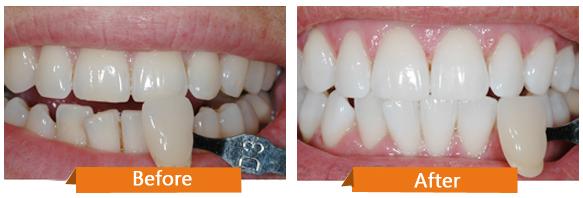Quy trình tẩy trắng răng tại nhà 2