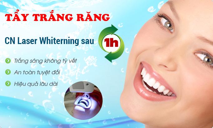 Làm trắng răng với công nghệ laser whitening