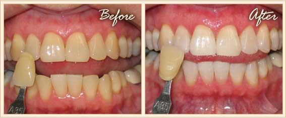 Bí quyết làm răng thẩm mỹ với công nghệ tẩy trắng Laser Whitening 3
