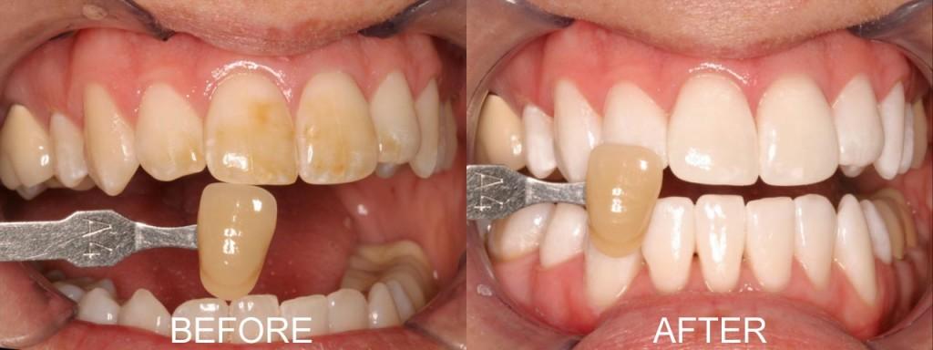 Làm răng thẩm mỹ bằng Laser Whitening mới nhất 2016 3