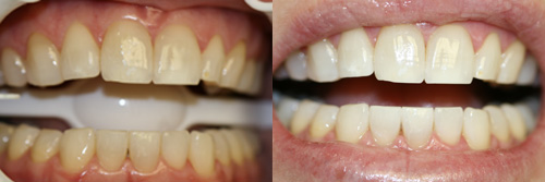 Bí quyết làm răng thẩm mỹ với công nghệ tẩy trắng Laser Whitening 5