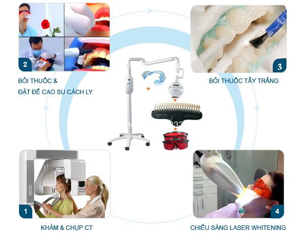 Bí quyết làm răng thẩm mỹ với công nghệ tẩy trắng Laser Whitening 2