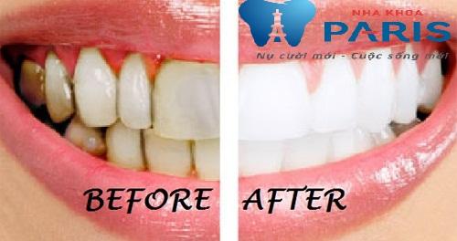 Cách sử dụng bột tẩy trắng răng có an toàn hay không? 2