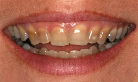 Có nên tẩy trắng răng nhiễm kháng sinh hay không?