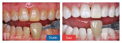 Giá tẩy trắng răng bao nhiêu tiền hợp lý nhất hiện nay? 2
