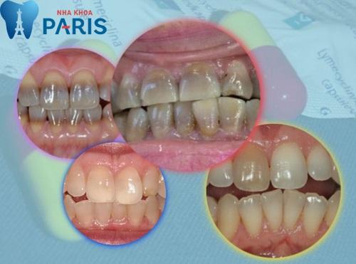 Răng ố vàng bẩm sinh - Nguyên nhân & Cách khắc phục TRIỆT ĐỂ 1