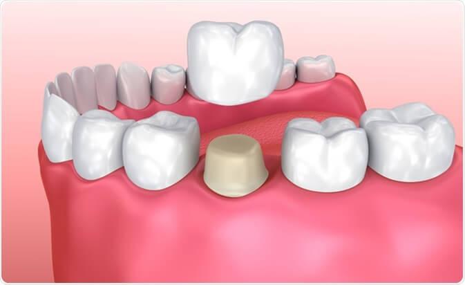 Răng ố vàng bẩm sinh - Nguyên nhân & Cách khắc phục TRIỆT ĐỂ 2
