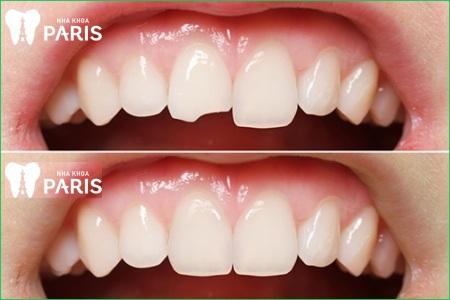 Tẩy trắng răng sau khi trám có được không