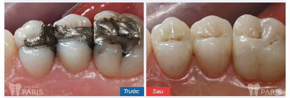 Có thể tẩy trắng răng sau khi trám được không?