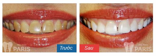 bột tẩy trắng răng có tốt không