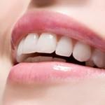 Bật mí cách làm răng trắng như sao Hàn SIÊU HIỆU QUẢ