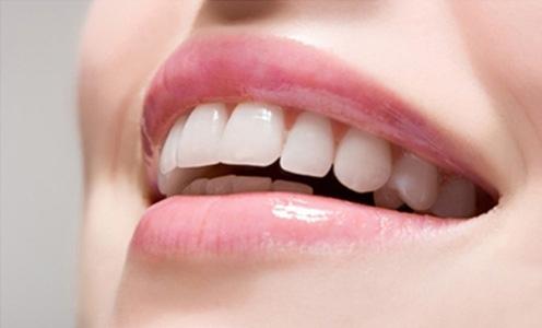 Tẩy trắng răng bằng dầu oliu cho hàm răng trắng, đẹp