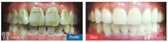 Răng ố vàng bẩm sinh có thể tẩy trắng được hay không?