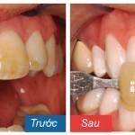 Giá tiền tẩy trắng răng bao nhiêu là hợp lý nhất?